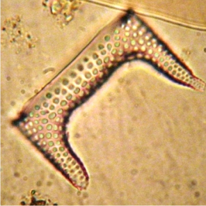 Diatoms in marine ecosystems
